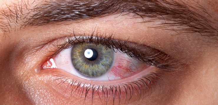 how to prevent dry eyes with contacts