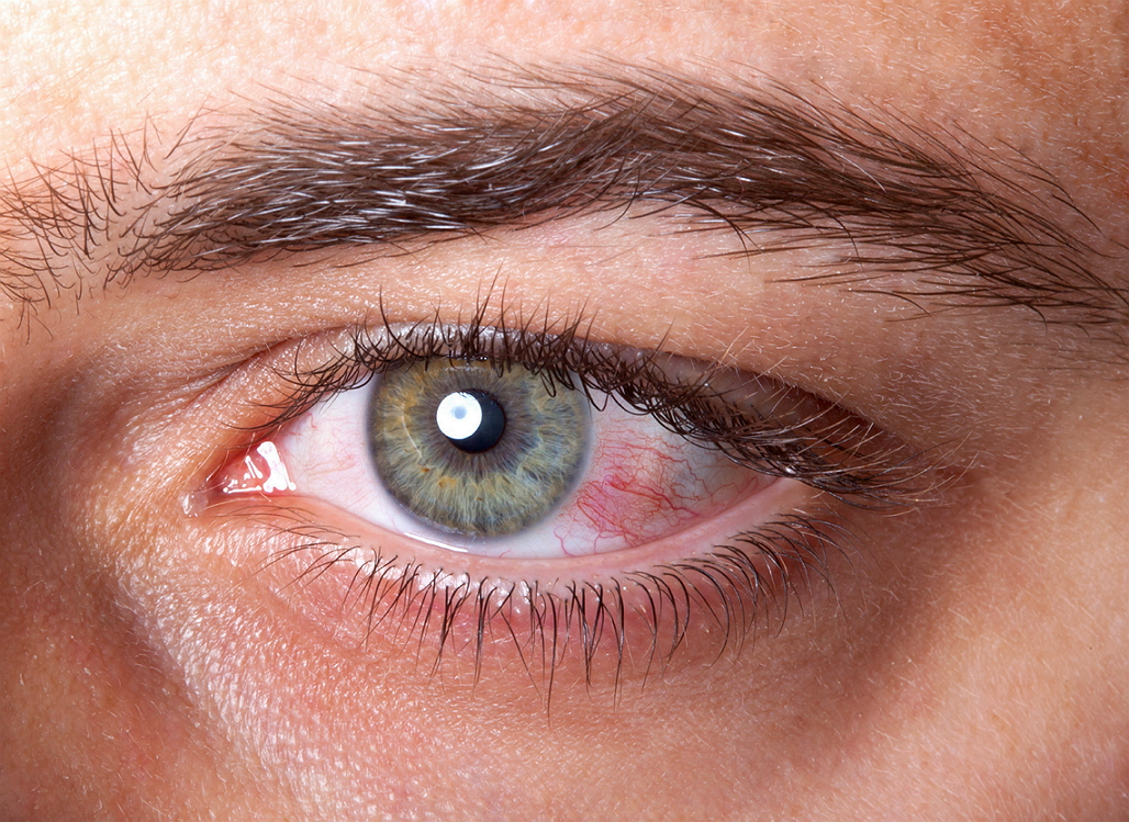 5e89d1989f8 HomeContact Lenses · how to prevent dry eyes with contacts