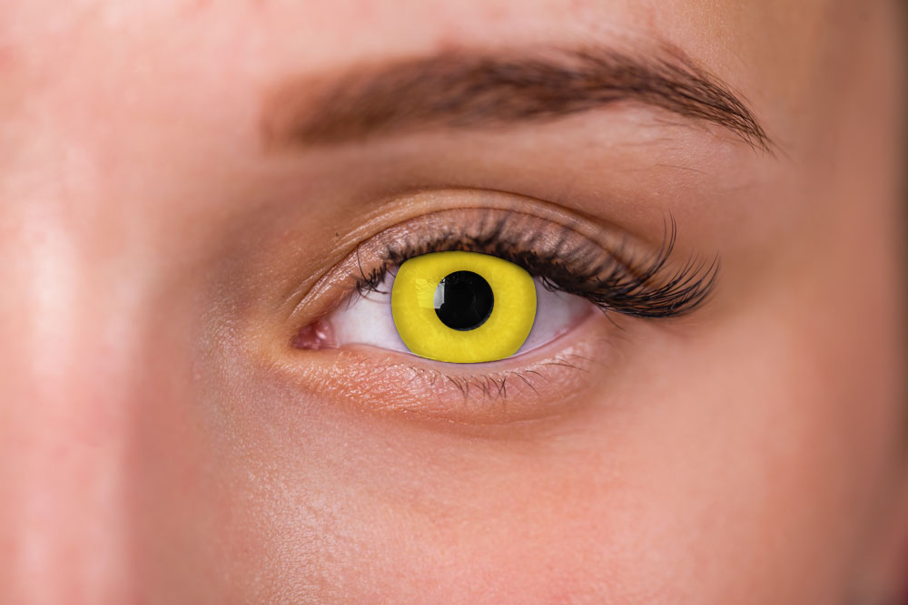Woman Wearing Lunatic Zombie Yellow Contacts